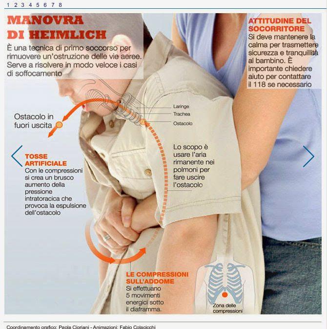 La Manovra di Heimlich: che cos'è e come si effettua